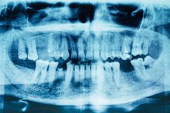 Panoramic dental x-ray image of teeth. Detail. Stock Photo