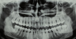 Panoramic dental X-ray - one wisdom teeth missing Stock Photos