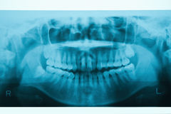 Panoramic dental X-Ray Royalty Free Stock Photos