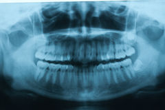 Panoramic dental X-Ray for Orthodontics Royalty Free Stock Photography