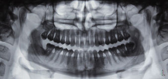 Panoramic dental X-ray - 31 teeth Stock Photo