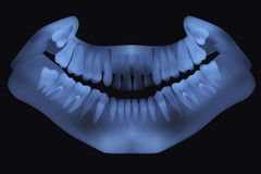 Panoramic dental X-Ray. Stock Image