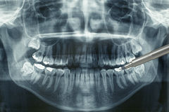 Panoramic dental xray Stock Images