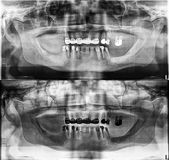 Panoramic dental Xray, fixed teeth, dental amalgam seal, dental crown and bridge, filled root canal. Impacted quality of xray images is always a compromise royalty free stock photo