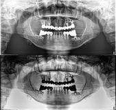 Panoramic dental Xray, fixed teeth, dental amalgam seal, dental crown and bridge,. Quality of xray images is always a compromise between patient safety limits stock photos