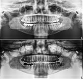 Panoramic dental Xray, fixed teeth, dental amalgam seal, wisdom teeth on side, horizontally impacted. Quality of xray images is always a compromise between stock image
