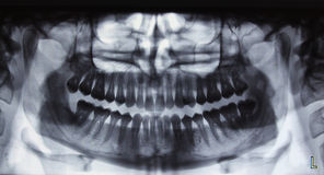 Panoramic dental Xray Royalty Free Stock Photo
