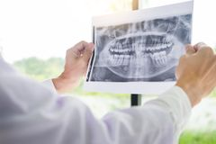 Panoramic dental X-ray of a human jaw holding in the hands of the dentist. Panoramic dental Xray of a human jaw holding in the hands of the dentist royalty free stock photos
