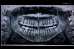 Panoramic dental XRay with a root canal. Panoramic dental  Ray with a root canal,  second molar down, female skull, 1:10 scale Royalty Free Stock Images
