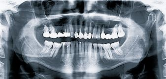 Panoramic medical dental x-ray scan.  royalty free stock photography