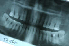 Panoramic radiography of mouth Royalty Free Stock Image