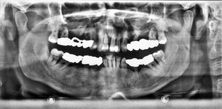 Panoramic x-ray image of teeth. In black and white Royalty Free Stock Photo