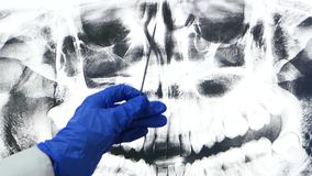 Panoramic tomography of the jaw and sinuses. The doctor`s hand shows an x ray shot on the screen.