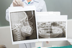 Panoramic x-ray jaw. A dentist holding an x-ray the patient`s to Royalty Free Stock Images