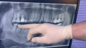 Panoramic X-ray of teeth on the monitor and the doctor`s hand in glove with the tool