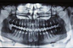 Panoramiczny stomatologiczny promieniowanie rentgenowskie - jeden mądrość zębów brakować zdjęcie royalty free