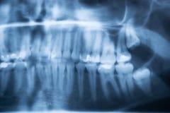 Panoramiczny Stomatologiczny promieniowanie rentgenowskie Ludzcy zęby Zdjęcia Stock