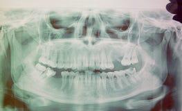 Panoramisch x-ray beeld van tanden Sommige verwijderde tanden, probleem met tanden royalty-vrije stock foto