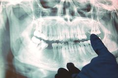 Panoramisch x-ray beeld van tanden Sommige verwijderde tanden, probleem met tanden stock afbeeldingen