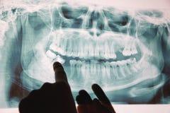 Panoramisch x-ray beeld van tanden Sommige verwijderde tanden, probleem met tanden royalty-vrije stock fotografie