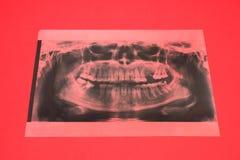 Panoramisch x-ray beeld van tanden Sommige verwijderde tanden, probleem met tanden op rode achtergrond royalty-vrije stock foto