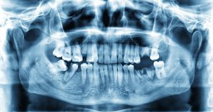 Panoramisch tand x-ray beeld van tanden stock afbeelding