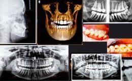 Panoramische en 3D tandröntgenstraal vele schoten Stock Foto