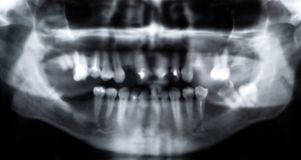 Panoramische röntgenstraal Stock Fotografie