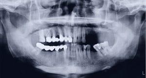 Panoramischer Röntgenstrahl des Munds Stockfotos