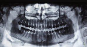 Panoramischer zahnmedizinischer Röntgenstrahl Lizenzfreies Stockfoto
