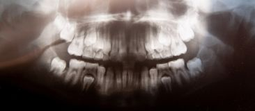 Panoramischer zahnmedizinischer Röntgenstrahl des Kinderfotos mit den Milchzähnen und den Viererzähnen Selektiver Fokus Gesundhei lizenzfreies stockfoto