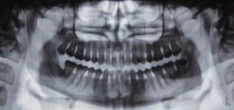 Panoramischer zahnmedizinischer Röntgenstrahl - 31 Zähne Stockfoto