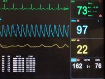 Pantalla de ECG Imagen de archivo libre de regalías