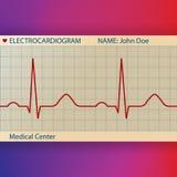 Papel del electrocardiograma con ECG normal Foto de archivo libre de regalías