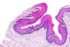 Papilloma della pelle di un essere umano Immagine Stock