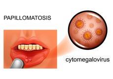 Papillomatosis della mucosa orale illustrazione di stock