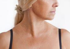 Papules mesotherapy sur le visage, le cou et le décolleté Photo stock