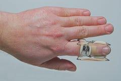 Paréntesis del dedo Fotografía de archivo