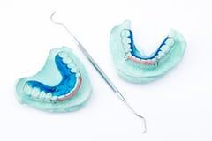 Paréntesis dental Foto de archivo