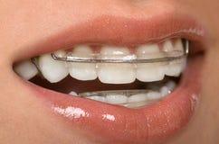 Paréntesis dentales Fotografía de archivo