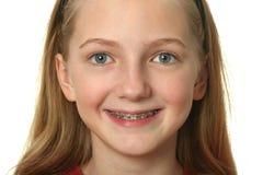 Paréntesis dentales Imagenes de archivo