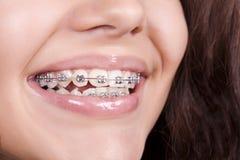Paréntesis dentales Fotografía de archivo libre de regalías