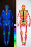 Exploración nuclear del cuerpo entero imagen de archivo libre de regalías