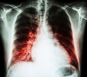 Parada cardíaca (PA da caixa do raio X do filme ereto: mostre que a cardiomegália e o interstício infiltram ambo o pulmão) fotografia de stock