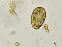 Paragonimus westermani (lung fluke) Stock Image