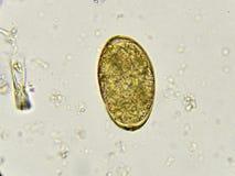 Paragonimus westermani (lung fluke) Stock Photography