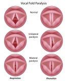 Paralysie de cordon vocal illustration libre de droits