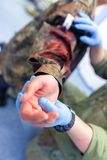 Paramedic soldier medicates a make up fracture. Soldier medicates a make up fracture royalty free stock images