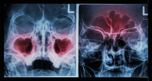 Paranasal κόλπος ακτίνας X ταινιών: παρουσιάστε ιγμορίτιδα στον άνω γναθιαίο κόλπο (αριστερή εικόνα), μετωπικός κόλπος (σωστή εικ στοκ εικόνα με δικαίωμα ελεύθερης χρήσης