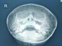 Paranasal sinuses promieniowania rentgenowskiego znalezienia z?b w prawym maxillary sinus ?adny sinusitis ?adny ko?cista masa lub fotografia royalty free